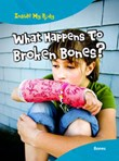What Happens to Broken Bones?: Bones