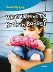 What Happens to Broken Bones?: Bones