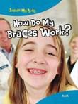 How Do My Braces Work?: Teeth