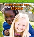 I Know Someone with Eczema