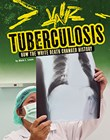 Tuberculosis: How the White Death Changed History