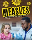 Measles: How a Contagious Rash Changed History